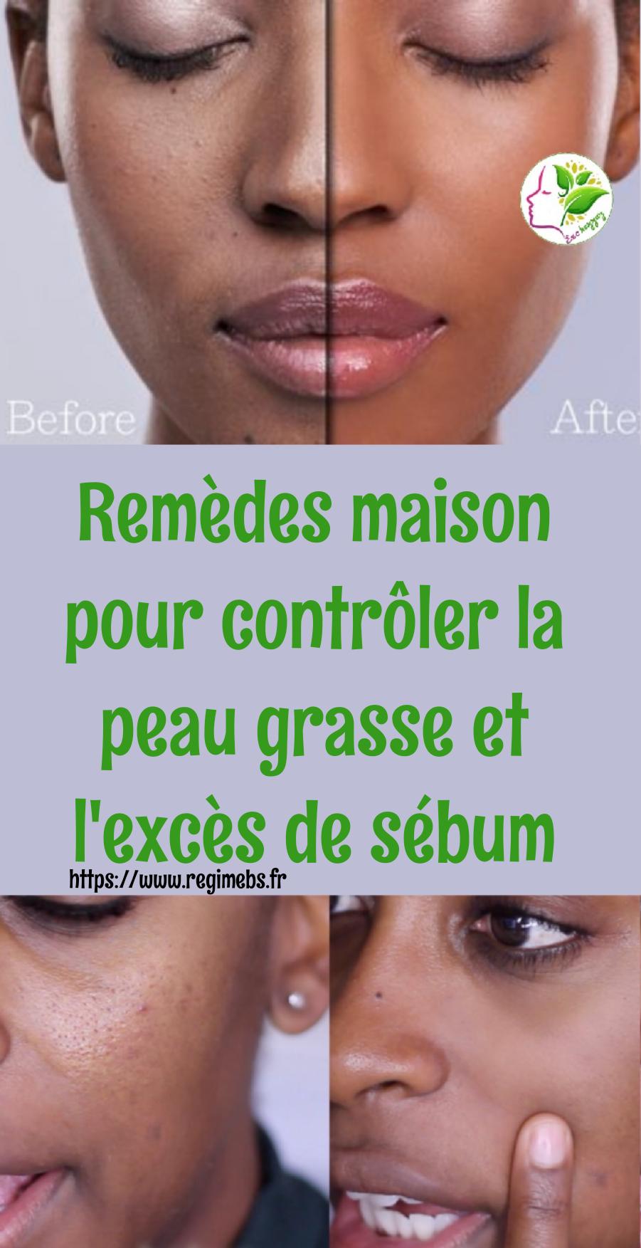 Remèdes maison pour contrôler la peau grasse et l'excès de sébum