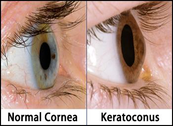 keratoconus, keratoconic cornea