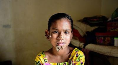 """Diagnostican a una niña que sufre la enfermedad del """"hombre arbol"""""""