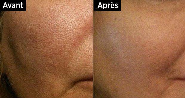 Les bonnes techniques pour resserrer les pores dilatés naturellement