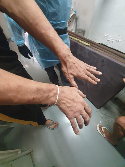 ידיים של אסיר עם עקיצות של חרקים