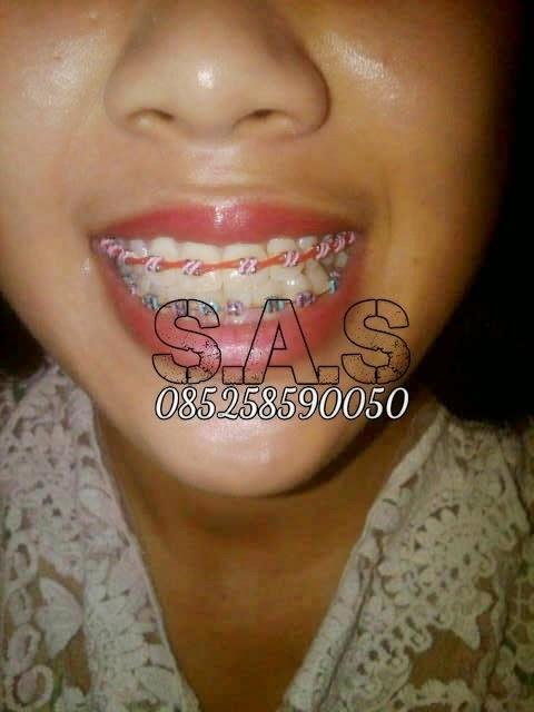 Foto Cewek Cantik Berbehel S A S Dental