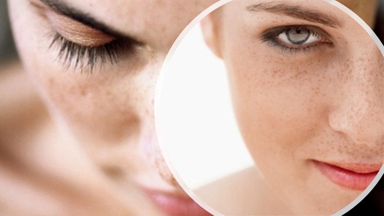 como eliminar verrugas de la edad
