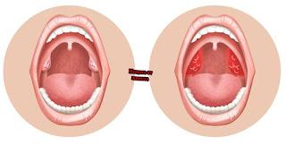 Симптоми на ангина при децата