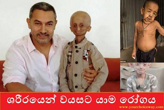 ශරීරයෙන් වයසට යාම රෝගය 😲😓 (Progeria) - Your Choice Way