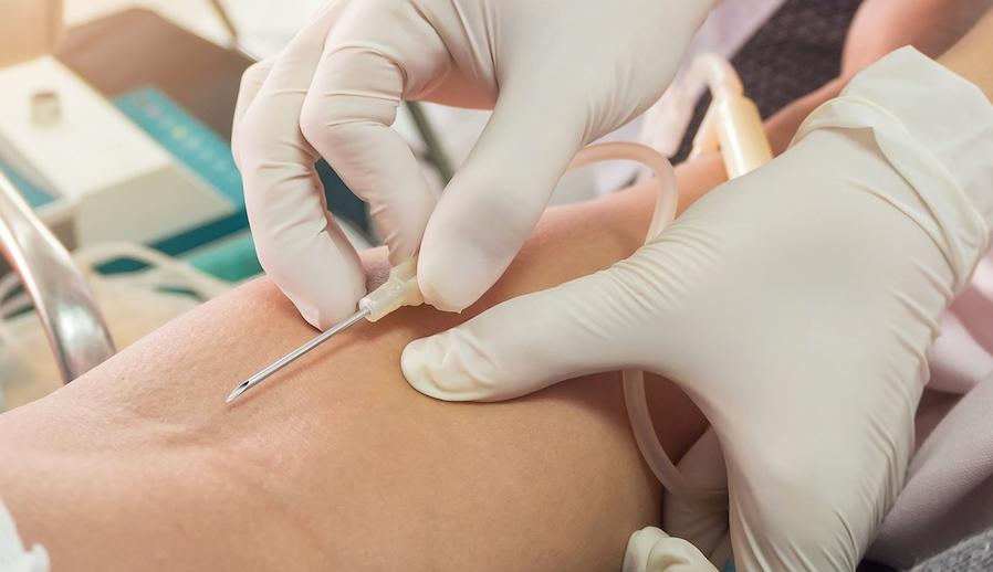 50 Tips Cara Pemasangan Infus Dalam 1 Tusukan Anti Gagal Nerslicious