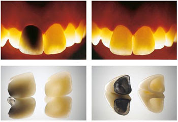 advantages of metal free crowns and bridges
