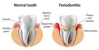 A comparison image between a healthy tooth and a tooth with gum disease picture