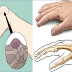 Ganglion Cyst Meaning: What Are Causes, Symptoms and Treatment