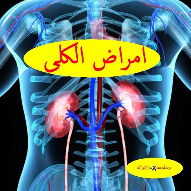 كلى,امراض الكلى,تنظيف الكلى,وظيفة الكلى,مريض الكلى,حصى الكلى,رمل الكلى,علاج الكلى,غسيل الكلى,اعراض الكلى,التهاب الكلى,التلي,صحة الكلى,مرض الكلى,مرضى الكلى,وظائف الكلى,أمراض الكلى,الكلوي,اعراض مرض الكلى,اعراض حصى الكلى,الفشل الكلوي,اعراض حصوة الكلى,التهاب الكلى,اعراض امراض الكلى,اعراض التهاب الكلى,المِرْض,الكلي,للكلى,لحصى الكلى,حصوة الكلى