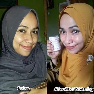 drw skincare Nganjuk Regency East Java