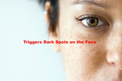 Triggers Dark Spots on the Face