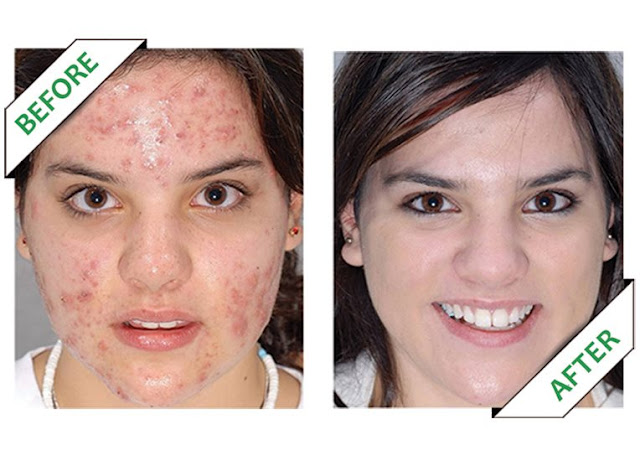http://plaza24.gr/krema-prosopou-saligari-anaplasi-me-deikth-prostasias-spf20-kai-kollagono.html
