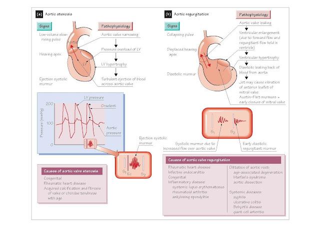 Diseases Of The Aortic Valve, Aortic stenosis, Aortic regurgitation,
