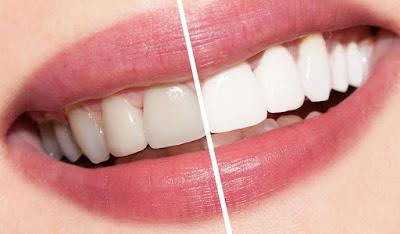 سر تبيض الأسنان في ثلاث أيام فقط