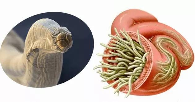 كائن الديدان الأسطوانية