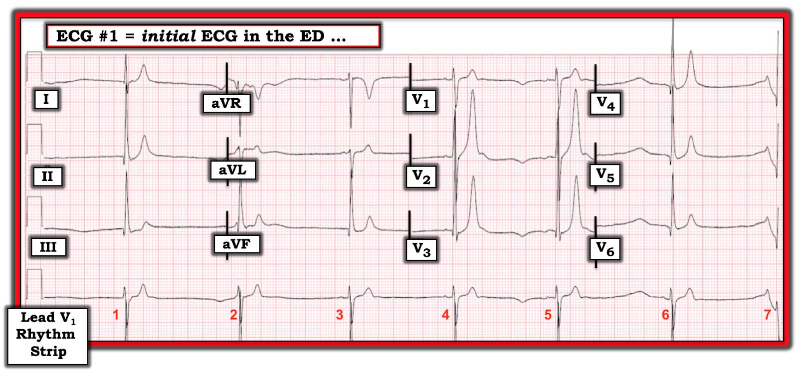 Dr  Smith's ECG Blog