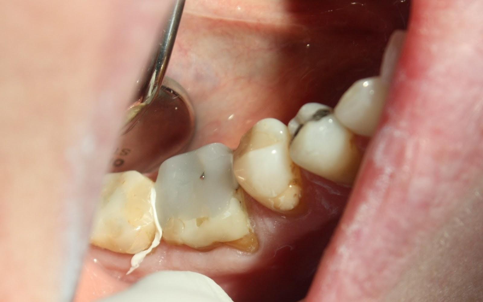 Iso Reikä Hampaassa