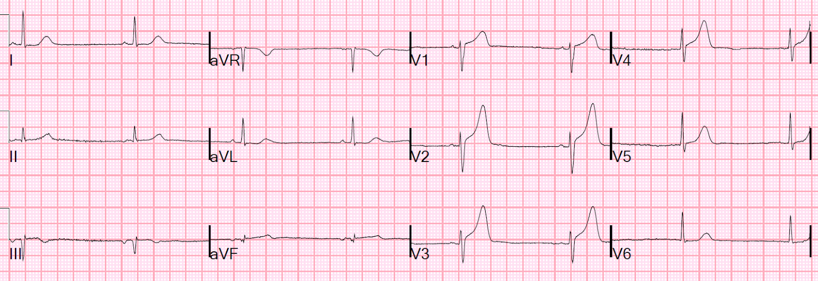 Dr Smiths Ecg Blog Patient Presentation Is Important And So Is R