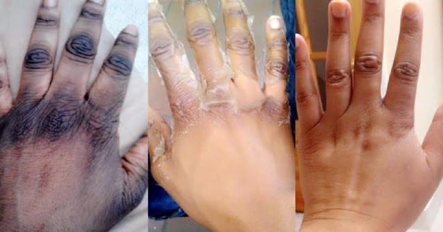 Astuce pour les doigts foncées
