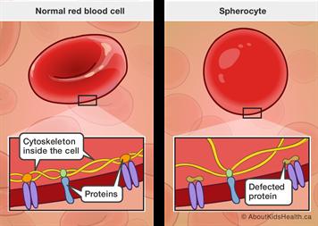 Hereditary spherocytosis (HS) is a common congenital hemolytic anemia