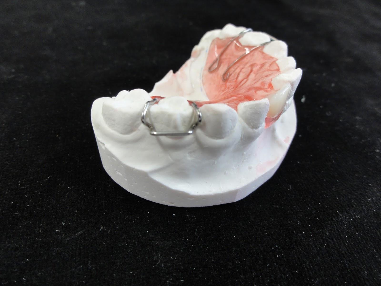 テーラーメイド歯科補綴修復物の紹介 Introduction of the tailor-maid dental prosthesis