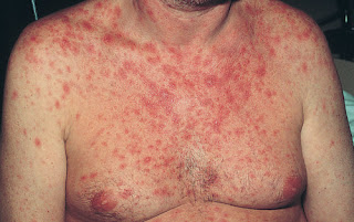 Maculopapular Rash affecting the patient's chest characterized by red raised bumps pictures of hiv rash