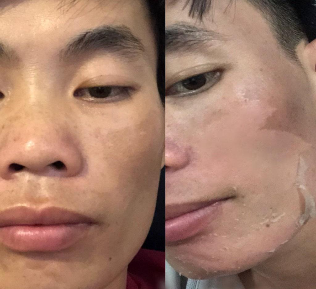 Bong da sau lần đầu Peel với acid salicylic