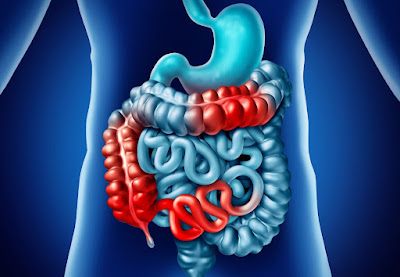 Recombinant Zoster Vaccine Benefits Older Patients with Inflammatory Bowel Disease or IBD