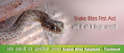 सांप काटने पर प्राथमिक उपचार Snakes Bites Treatment in Hindi