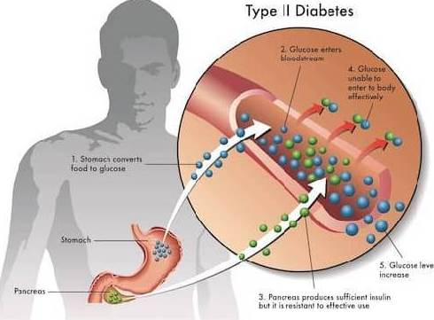 Type 2 diabetes is due to insulin