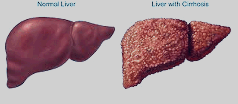 Liver Cancer Stage 4 Life Expectancy