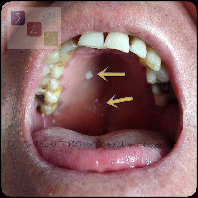 Lichen Planus in The Hard Palate and Soft Palate