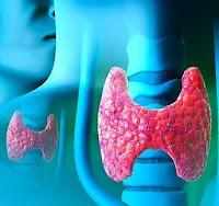 tiroidita fibroasa riedl