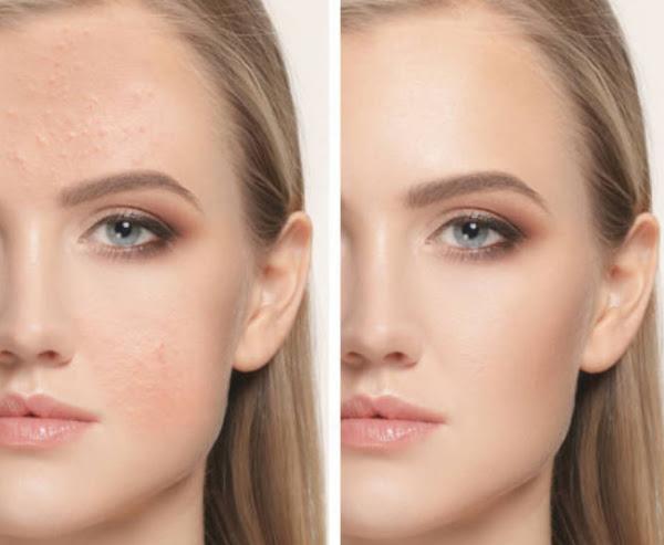 Wajah Sebelum dan Setelah Sembuh Jerawatan (Before After Acne Treatment)