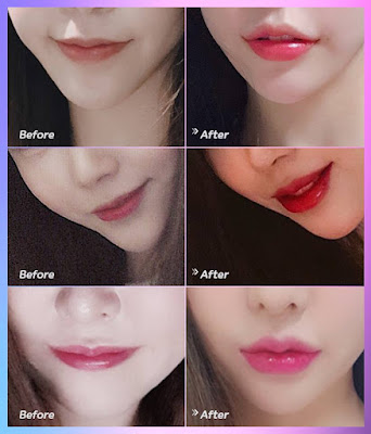 Best Make Up Plastic Surgery Gangnam Korea