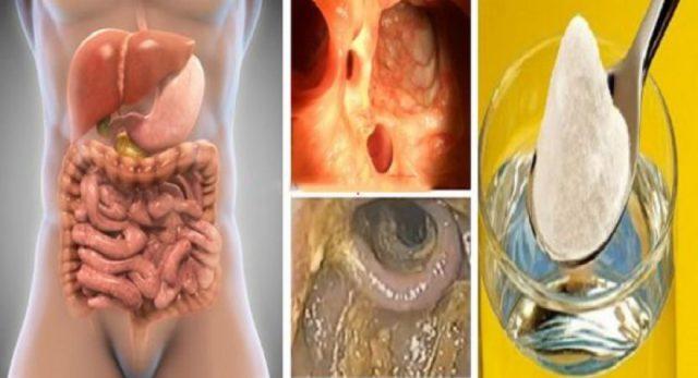 Détox de 3 jours qui élimine toutes les toxines, la graisse, l'excès d'eau et nettoie les artères obstruées