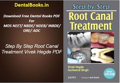 Step By Step Root Canal Treatment Vivek Hegde PDF