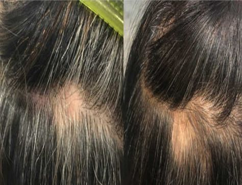 Mettre fin aux cheveux gris avec ce remède maison aux pommes de terre