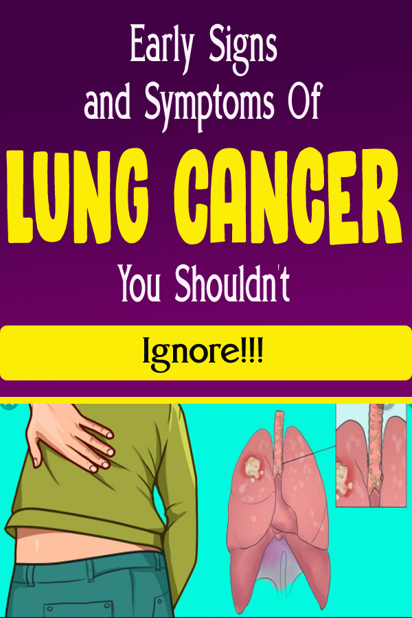 Early Signs and Symptoms Of Lung Cancer You Shouldn't Ignore!!!