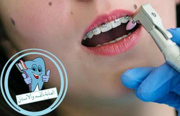 طريقة ازالة الجير من الاسنان
