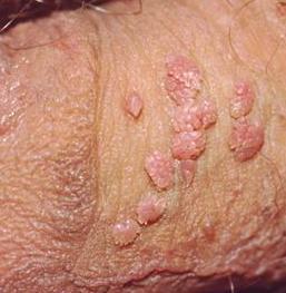 Tata Cara Pengobatan Penyakit Kutil kelamin Secara Alami