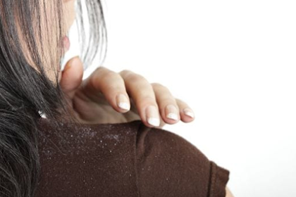 TOP 5 NATURAL WAYS TO CURE DANDRUFF