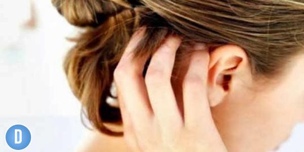 Cara Menghilangkan Gatal, cara alami menghilangkan gatal gatal di kepala, cara cepat menghilangkan gatal di kepala, cara cepat menghilangkan gatal di kulit kepala, cara mengatasi gatal dikulit kepala, cara menghilangkan gatal di kepala akibat ketombe, cara menghilangkan gatal di kepala dan ketombe, cara menghilangkan gatal di kepala dengan bahan alami,