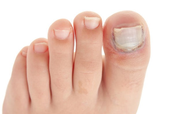 Perfect and Proven Home Remedies For Nail Fungus | journal red