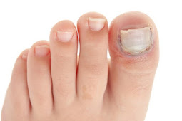 Helpful and Proven Home Remedies For Nail Fungus