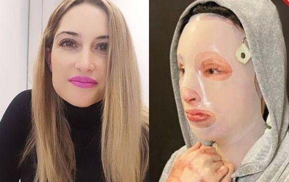 Σοκάρουν οι φωτογραφίες της Ιωάννας από την επίθεση με βιτριόλι - Προσοχή σκληρές εικόνες (βίντεο)