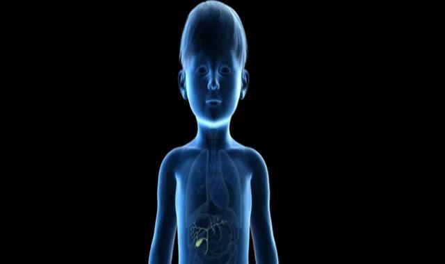 gallbladder,signs and symptoms,symptoms of gallbladder stones,pediatrics,obesity signs and symptoms,pediatric grand rounds,symptoms,treating gallbladder disease,gallbladder stones,gallbladder disease,managing gallbladder disease,pediatric oncall,symptoms of gallstones,removal of gallbladder,pediatric respiratory distress,biliary atresia symptoms,symptoms of pancreatitis,pediatric laparoscopic cholecystectomy,obesity risk factors,risk factor,pediatric neurosurgery