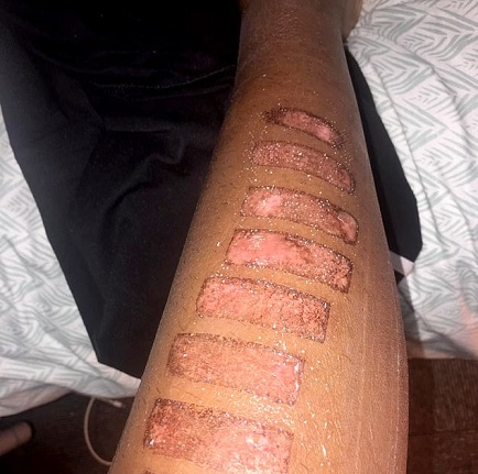 Lady Left Scarred For Life After Laser Hair Removal Treatment