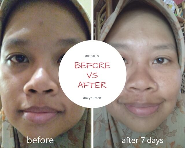 berkenalan dengan produk KF Skin
